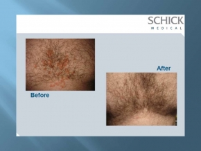 Before and After SQOOM treatment www.dlux.gr