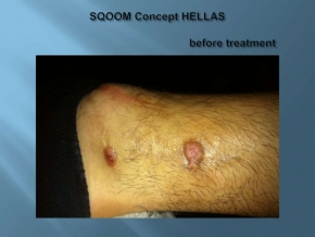 Before SQOOM treatment chronic skin ulcer www.dlux.gr