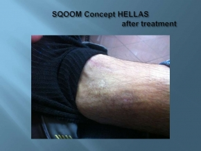 After SQOOM  treatment of chronic skin ulcer www.dlux.gr