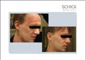 BEFORE AND AFTER SQOOM TREATMENT - ΔΕΡΜΑΤΙΚΕΣ ΠΑΘΗΣΕΙΣ ΠΡΙΝ ΚΑΙ ΜΕΤΑ ΤΗΝ ΕΦΑΡΜΟΓΗ ΜΕ SQOOM - www.dlux.gr