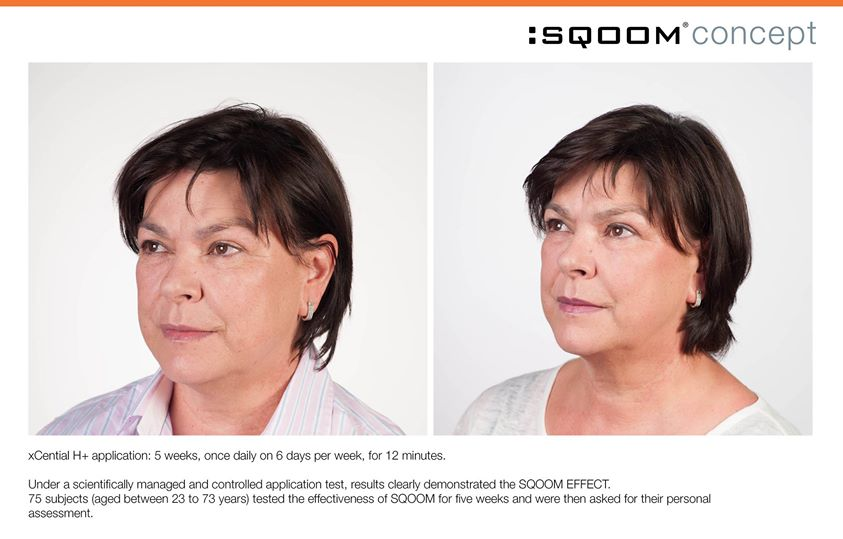 IT IS AMAZING WHAT SQOOM TheSkinRevolution CAN DO FOR YOUR SKIN!